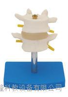 正常腰椎组合(二节) KAH/A11109/1