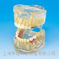 透明乳牙发育模型 KAH/B10012