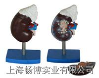 肾解剖附肾上腺模型  XC-310-3