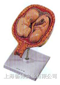人体胚胎医学模型|五个月双胞胎模型 GD/A42005/8