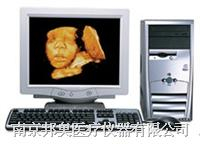 三维超聲影像管理系統 MG-663D