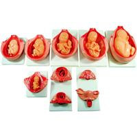 计划生育培训模型|KAH-XC818胎儿妊娠发育过程模型 KAH-XC818