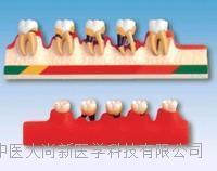 牙周病分类模型