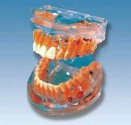 透明牙体病理模型 SX-607