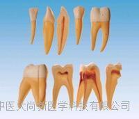 牙放大模型 SX-613