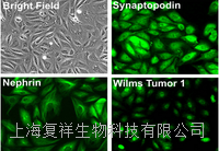 美國Primary Mouse Podocyte小鼠原代腎足細胞 PCKDM01