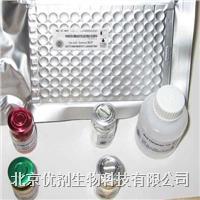 人血管生成素1(ANG-1)ELISA试剂盒 ARB10649