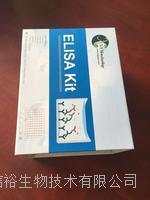 人原纤蛋白1(FBN1)试剂盒