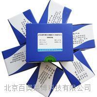 金黄色葡萄球菌杀白细胞素(PVL)单重荧光PCR检测试剂盒 SYA039